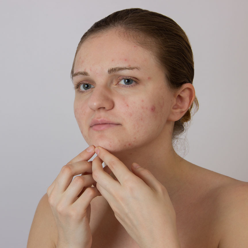 RevLite for Acne Scar Reduction
