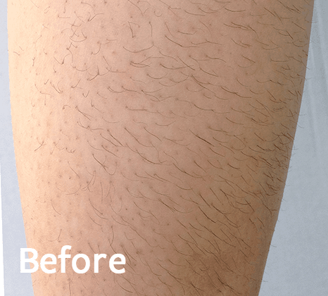 Diolaexl Hair Removal Treatment