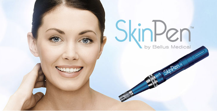 Remove Fine Lines with SkinPen