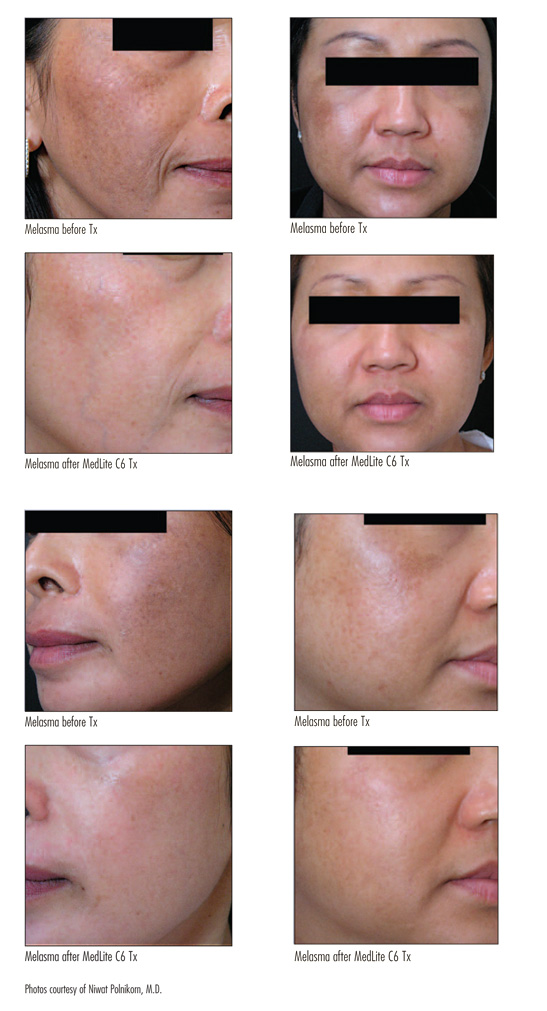 melasma laser treatment before and after pictures